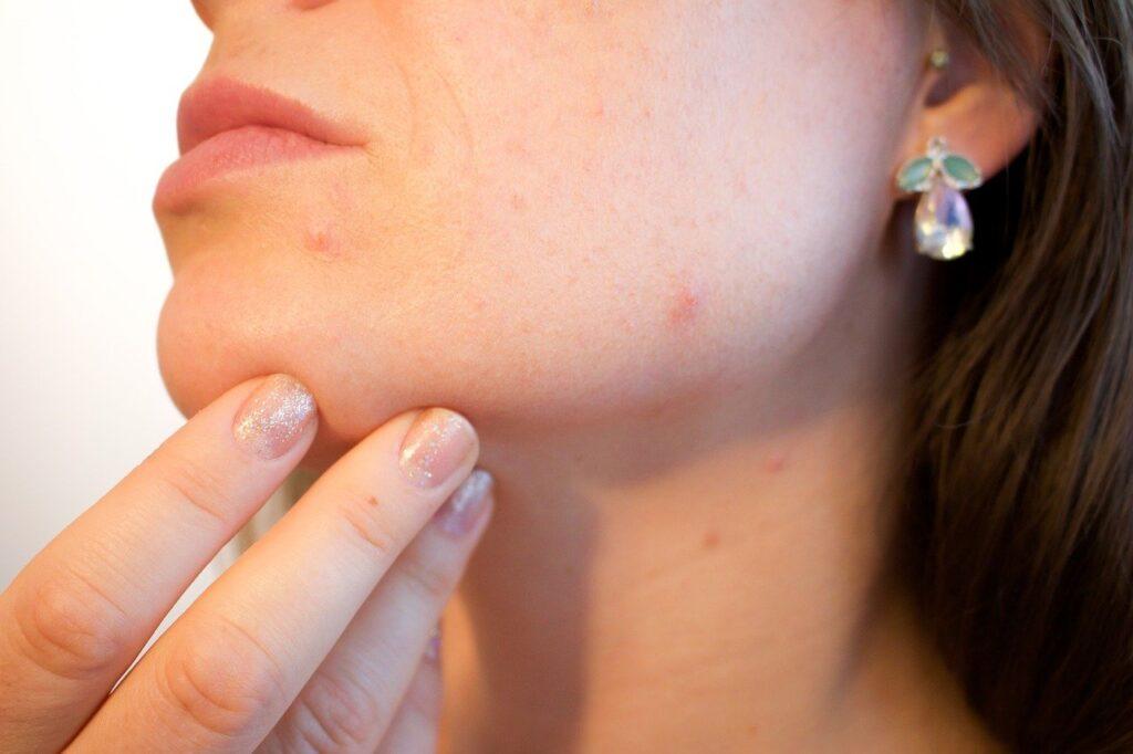 acne, pores, skin